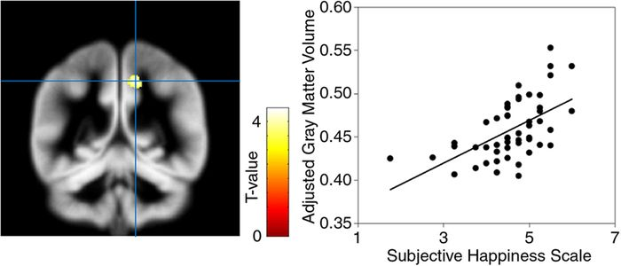 Brain region significantly associated with the subjective happiness score