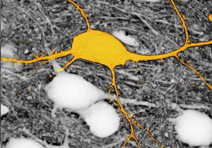 Image of the neuron labelled in yellow surrounded by unlabelled neurons (appearing in white) using the SUSHI technique. Without this technique, the neurons appearing in white would not be visible. / Credit: © Jan Tønnesen & Valentin Nägerl.